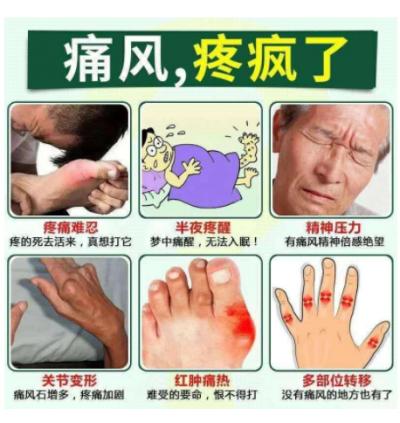 李善堂 保慈丸 尿酸风湿关节炎手脚麻痹 Uric Acid Rheumatism Arthritis Numbness of Hand and Feet